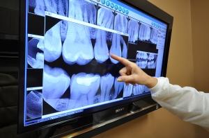 ottawa-dentist-jaleel-x-ray