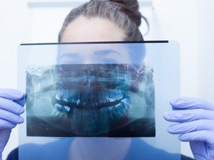 seidner-dentistry-randolph-nj-dentist-dental-xrays-image